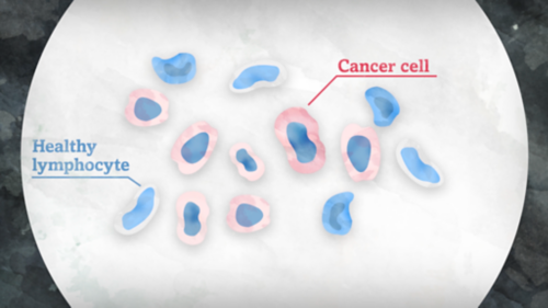 La imagen muestra dos tipos de células como se observarían con un microscopio, una es un linfocito saludable y la otra es una célula cancerosa.