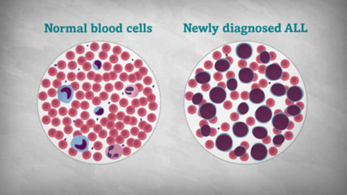 Illustration of two histology slides side by side highlights the difference between normal bloody cells and blood cells in newly diagnosed ALL.