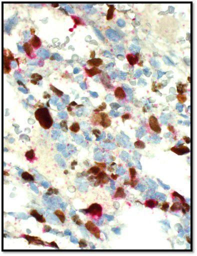 Muestra de inmunohistoquímica que muestra blastos que tienen marcadores de célulasT en rojo y marcadores de megacariocitos en marrón.