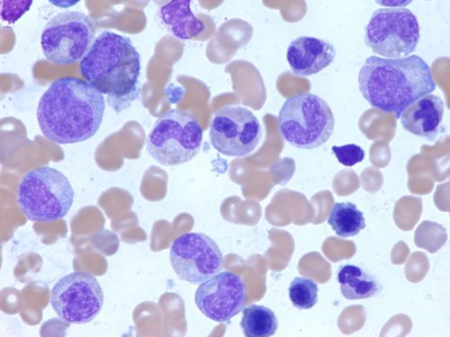 Microscope image that shows normal bone marrow