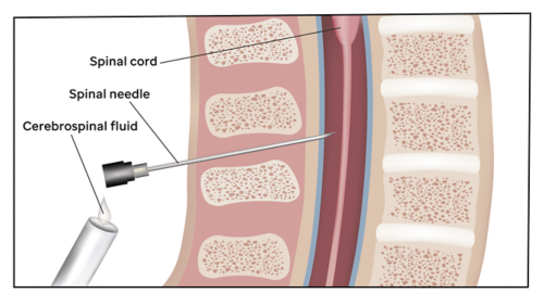 Graphic showing a spinal needle inserted into the spinal column to receive a sample of cerebrospinal fluid.
