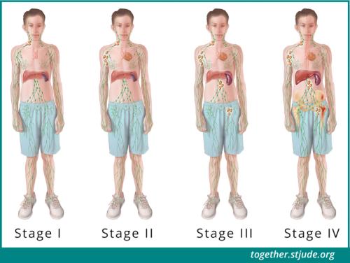 Cette illustration montre les zones du corps affectées par la maladie à chaque stade du lymphome non hodgkinien.