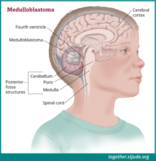 What is Medulloblastoma? Medulloblastoma is a brain tumor of the cerebellum. The cerebellum is found in a region of the brain called the posterior fossa.