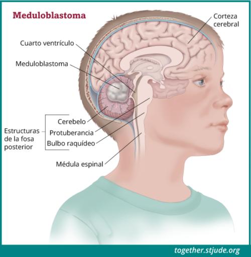 La imagen muestra las estructuras de la fosa posterior del cerebro dentro de la cabeza de un niño.