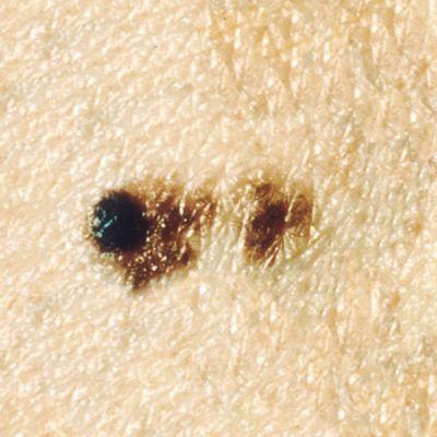 यह तस्वीर स्पष्ट रूप से परिभाषित सीमा के बिना मेलेनोमा घाव को दिखा रही है।