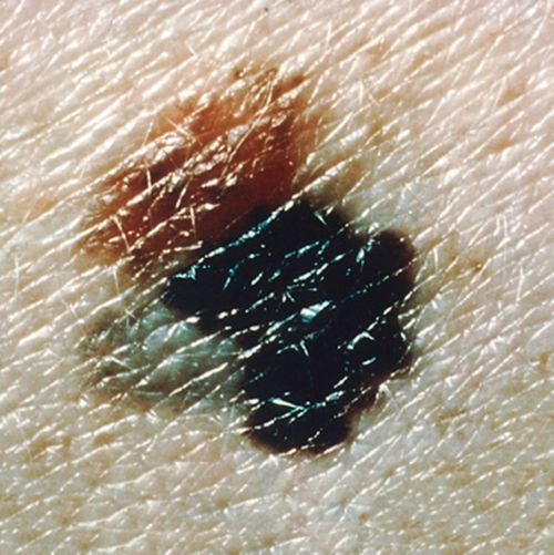 This picture shows a melanoma lesion with varying colors.