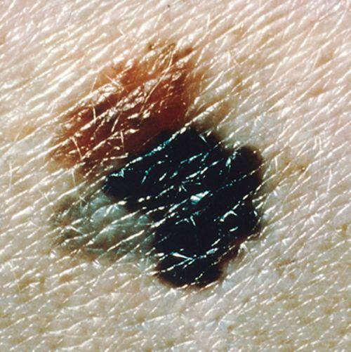 यह तस्वीर अलग-अलग रंगों के साथ एक मेलेनोमा घाव को दिखा रही है।