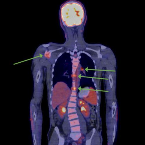 कैंसर फैला हुआ (मेटास्टैटिक) मेलेनोमा से पीड़ित बाल रोगी का पैट स्कैन। छवि को मेलेनोमा फैलने वाले भागों को दर्शाने के लिए चिह्नित किया जाता है।