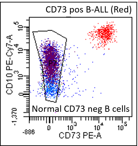 Sample flow cytometry chart shows minimal residual disease as a red cluster in the upper right quadrant of the chart in a pediatric patient with B-cell acute lymphoblastic leukemia