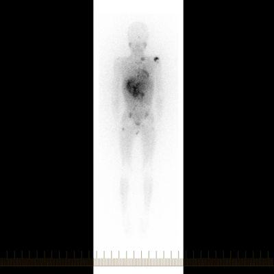 Escaneo con MIBG de cuerpo completo con vista frontal, o anterior, de un paciente con neuroblastoma.