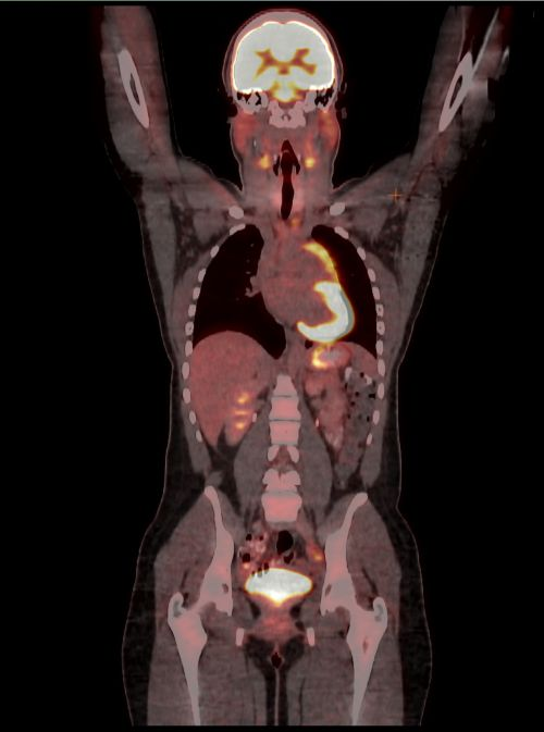 एक नॉन-हॉजकिन लिंफोमा के बाल रोगी का पैट सीटी स्कैन