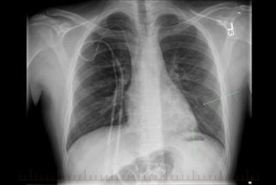 Hodgkin မဟုတ်သော ပြန်ရည်ကျိတ်ကင်ဆာဝေဒနာရှင် ကလေးလူနာ၏ ရောဂါလက္ခဏာပြပြီဖြစ်သည့် ရင်ဘတ် X-ray ဓာတ်မှန်။