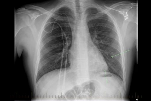 Chest X-ray with evidence of non-Hodgkin lymphoma in pediatric patient.