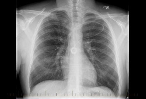 RayosX del tórax de un paciente pediátrico de linfoma no Hodgkin sinsignos de enfermedad.