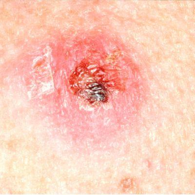 इस तस्वीर में एक त्वचा के कैंसर के घाव को दिखाया गया है जिसमें एक पपड़ी है।
