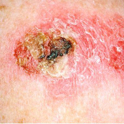 यह तस्वीर त्वचा के कैंसर के घाव को दिखाती है, जो लाल और भूरे रंग का है, बहुत खुरदरा और पपड़ीदार है।