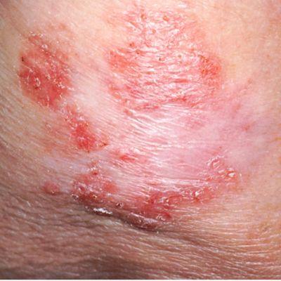 यह तस्वीर एक त्वचा कैंसर के घाव को दिखाती है जो सपाट, शुष्क और पपड़ीदार है।