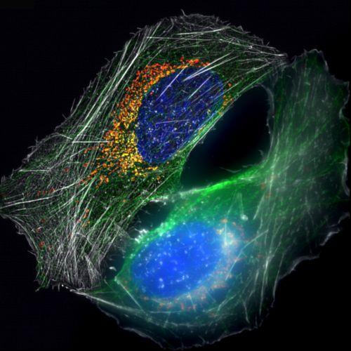 osteosarcoma cells