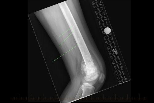 تبين الأشعة السينية منظرًا أماميًا/خلفيًا (من الأمام للخلف)للآفات المتخطية من الساركوما العظمية في عظمة فخذ المريض.