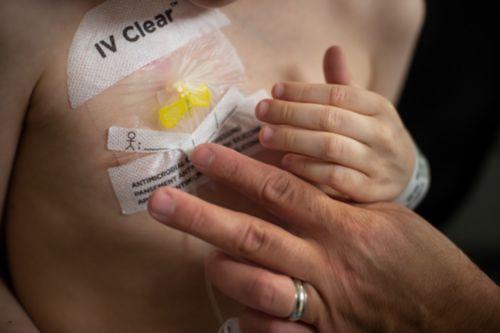 """एक सब सब्क्यूटेनियस या """"सब क्यू"""" पोर्ट केंद्रीय शिरापरक कैथेटर होता है जो पूरी तरह से त्वचा के नीचे होता है। ह्यूबर सुई की मदद से पोर्ट के ज़रिए दवा दी जाती है। इस फ़ोटो में, कैंसर के रोगी को पोर्ट लगाया गया है और एक नर्स उस जगह पर ड्रेसिंग कर रही है।"""