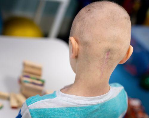 接受手术切除髓母细胞瘤(一种颅后窝肿瘤)的儿童中约有 25% 会出现颅后窝综合征(也称为小脑性缄默症)。在这张图片中,一名年轻的髓母细胞瘤患者在玩积木。
