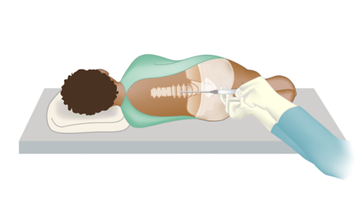 Patient laying on side with needle being inserted into spine for lumbar puncture