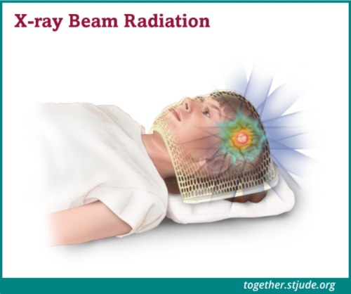 Radiation therapy uses beams of radiation, X-rays or protons, to shrink tumors and kill cancer cells. Radiation works by damaging the DNA inside cancer cells.