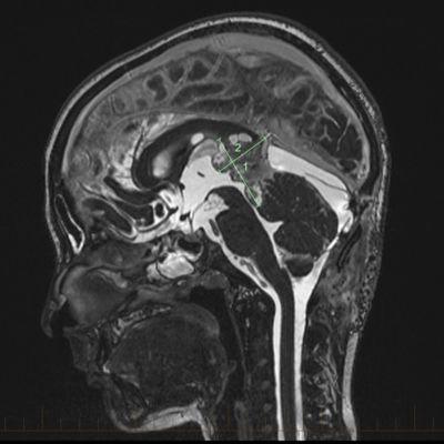 ورم الأرومة الصنوبرية هو ورم نادر لدى الأطفال يصيب الغدة الصنوبرية في الدماغ. تمثل أورام الأرومة الصنوبرية نحو نصف عدد الأورام التي تظهر في الغدة الصنوبرية.