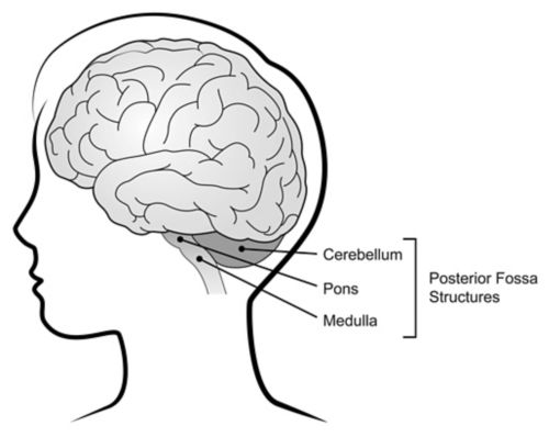 Illustration showing the posterior fossa structures of the brain within a child's head