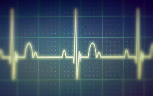 Closeup of heart monitor screen