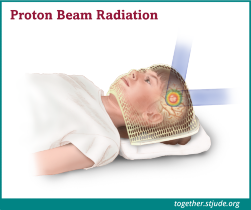 What is proton therapy? Proton therapy is a type of radiation therapy that uses protons as its energy source. The amount of energy and how deep it goes into the tumor can be tailored to match each tumor's size and shape. In proton radiation the beam can stop at the tumor site. This allows doctors to aim high doses of radiation at tumors and minimize damage to nearby healthy cells.