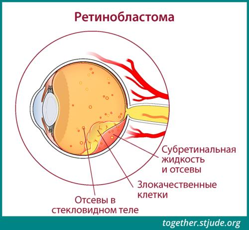 На этом рисунке показаны признаки ретинобластомы в анатомических структурах глаза: отсевы в стекловидное тело, раковые клетки, субретинальная жидкость и ее обсеменение.