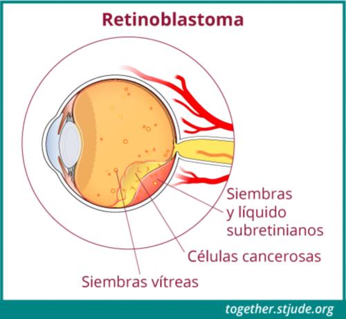 Esta ilustración muestra signos de enfermedad con retinoblastoma etiquetado en la anatomía del ojo: siembras vítreas, células cancerosas, siembras y líquido subretinianos.