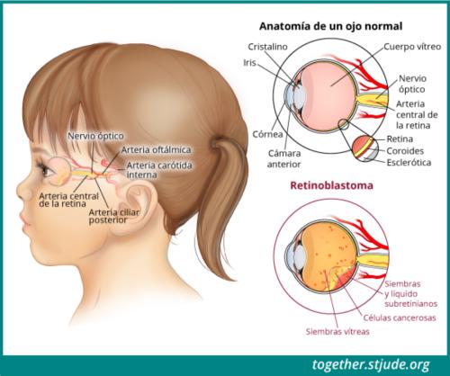 Esta ilustración muestra una vista lateral de la cabeza de una niña. Se etiquetó la anatomía de su ojo y los signos de la enfermedad: cristalino, iris, córnea, cámara anterior, humor vítreo, nervio óptico, arteria central de la retina, retina coroides esclerótica, células cancerosas, siembras vítreas, y siembras y líquido subretinianos.