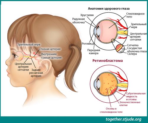 На этом рисунке изображена голова маленькой девочки, вид сбоку. Обозначены анатомические структуры и признаки заболевания: хрусталик, радужка, роговица, передняя камера, стекловидное тело, зрительный нерв, центральная артерия сетчатки, сетчатка, сосудистая оболочка, склера, раковые клетки, обсеменение стекловидного тела, субретинальная жидкость и ее обсеменение.