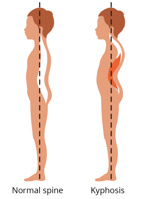 Graphic showing a normal spine compared to a spine with kyphosis