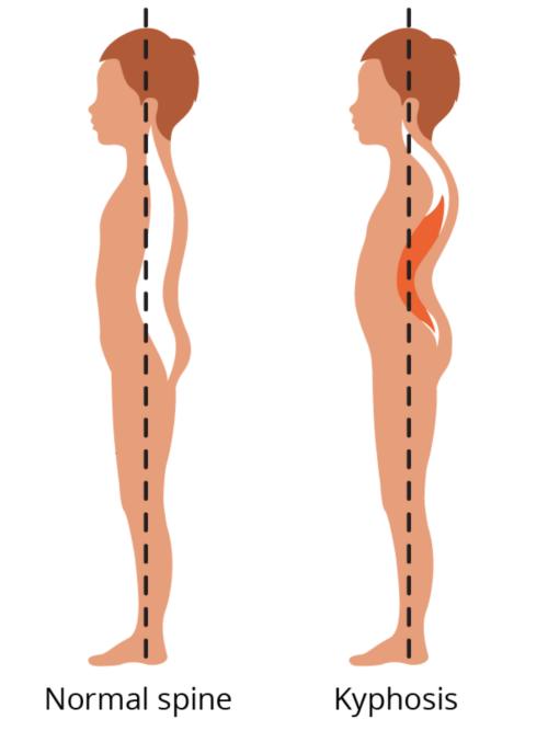 Вид нормального позвоночника в сравнении с позвоночником с кифозом