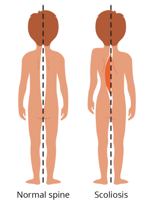 Graphic showing a normal spine compared to a spine with scoliosis