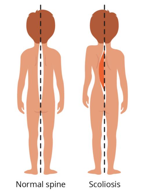 图示正常脊柱与脊柱侧凸的比较