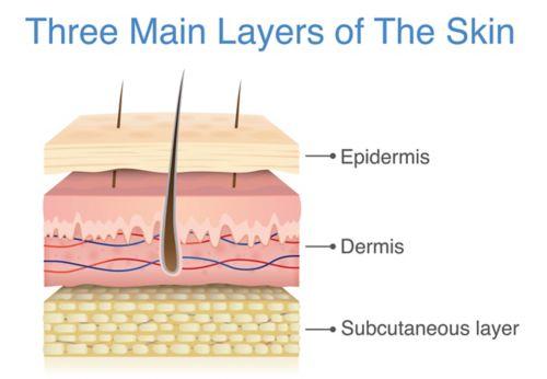 Рисунок поперечного сечения слоев кожи с обозначением эпидермиса, дермы и подкожного слоя.