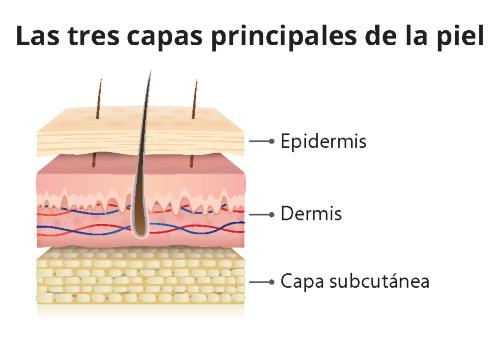 Un gráfico que muestra una vista transversal de las capas de la piel, con etiquetas que identifican la epidermis, la dermis y la capa subcutánea.