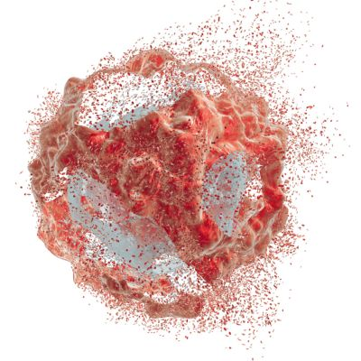 """What is tumor lysis syndrome? When a cell dies, it releases its contents into the body. """"Lysis"""" refers to the breakdown of a cell."""