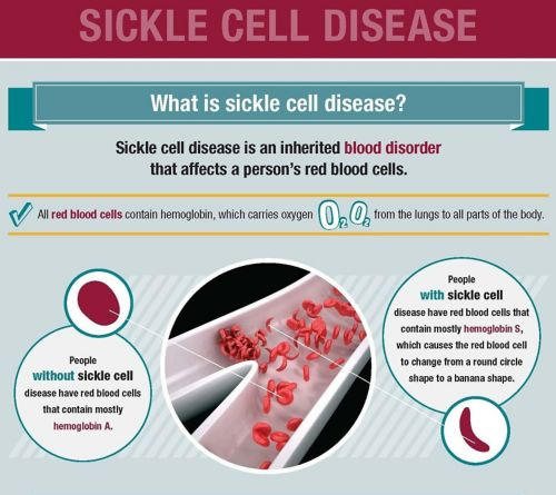 Graphic explaining sickle cell disease