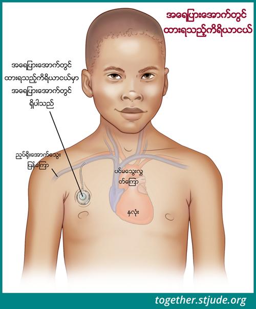 သွေးနမူနာများရယူရန်၊ ကီမိုဆေးသွင်းခြင်း ကုထုံးဆေးသွင်းရန်၊ အရည်နှင့် ဓာတ်ဆားများပေးသွင်းရန်၊ သွေးပြန်ကြောမှတဆင့် အာဟာရဓာတ်ပေးရန် နှင့် ပဋိဇီဝဆေးများနှင့် အခြားဆေးဝါးများ ပေးသွင်းရန်တို့အတွက် ပင်မသွေးပြန်ကြောပိုက်ကို အသုံးပြုနိုင်သည်။ ဤသရုပ်ဖော်ပုံတွင် အရေပြားအောက်ရှိ ပင်မသွေးပြန်ကြော ဝင်ထွက်ပေါက်ပိုက်တစ်ခု၏နမူနာကို ပြသထားပါသည်။