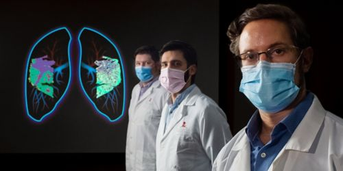 Three men in white coats and masks with an image of the lungs