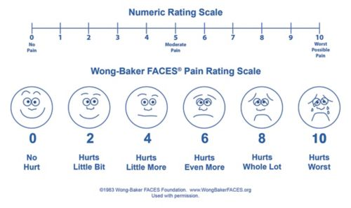 Pain scale example that shows a series of faces that change from a happy face depicting no pain to a sad and crying face to show the worst pain.