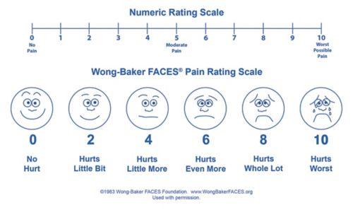 Ejemplo de una escala de dolor que muestra una serie de caras que van desde una cara feliz, que no manifiesta dolor, hasta una cara triste con llanto, que manifiesta el peor dolor.