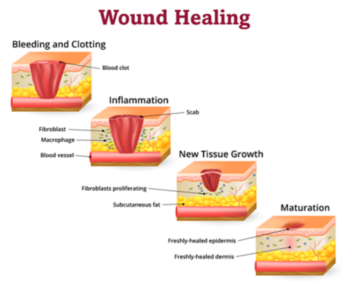 Stages of wound healing include bleeding and clotting, inflammation, new tissue growth, and maturation.