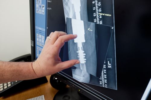 X-ray with prosthesis on screen being reviewed